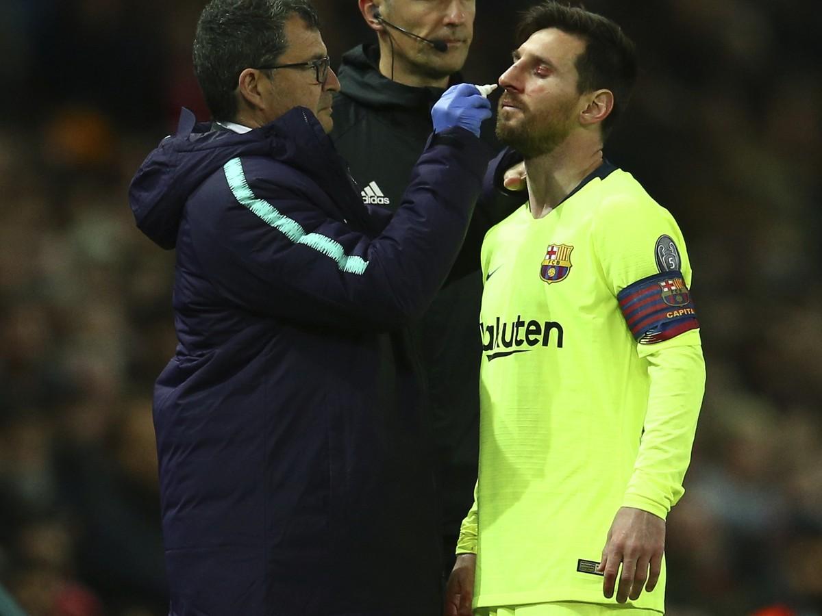 306636045 VIDEO Messi okúsil tvrdosť anglického futbalu: Zakrvavená tvár poriadne  vystrašila fanúšikov!