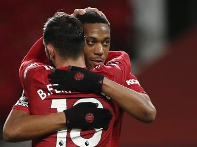 Bruno Fernandes a Anthony