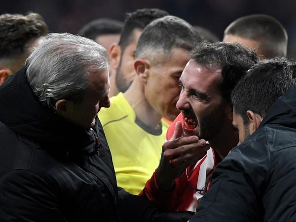 Diego Godín prišiel po súboji o tri zuby