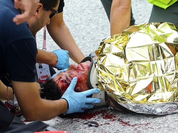 Domenico Pozzovivo utrpel škaredé zranenie aj na Giro d'Italia v roku 2015