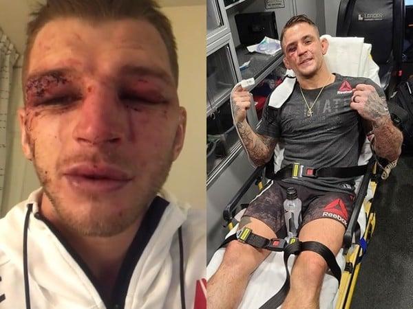 Dan Hooker aj Dustin Poirier bitvu zvládli s krvavými zraneniami