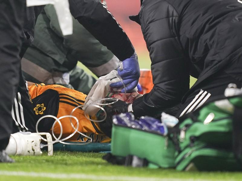 Mexický futbalista Raúl Jiménez utrpel na pôde Arsenalu Londýn fraktúru lebečnej kosti