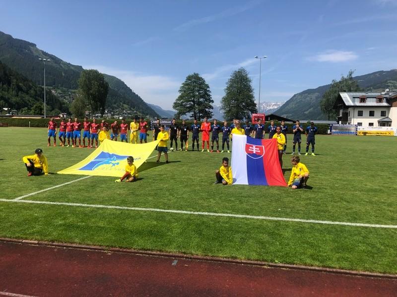 Slovenskí reprezentanti do 21 rokov podľahli rovesníkom z Česka