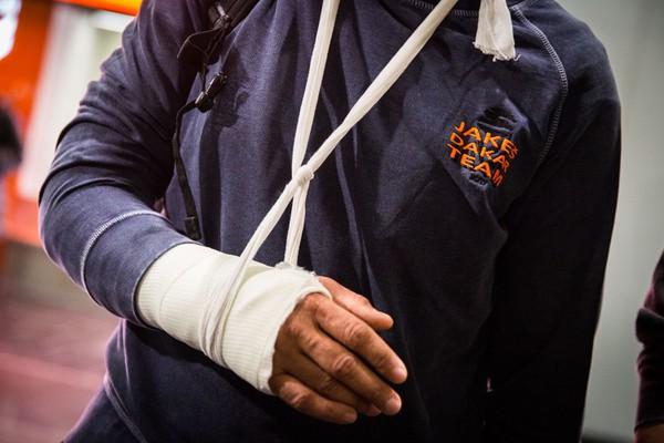 Pohľad na zlomenú ruku