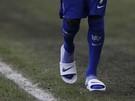 Uhádnete, komu patria tieto nohy a šľapky?